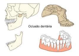 oclusão  dentaria